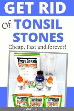 Easily get rid of tonsil stones. Prevent tonsil stones and throat stones. Get rid of bad breath. Oral Health, Health And Wellness, Health Tips, Health Recipes, Natural Medicine For Anxiety, Tonsil Stones, Bad Breath Remedy, Oral Hygiene, Medical Conditions