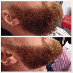 Sculpted beard