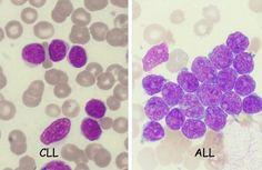 Myelocyte Vs Promyelocyte - - Yahoo Image Search Results