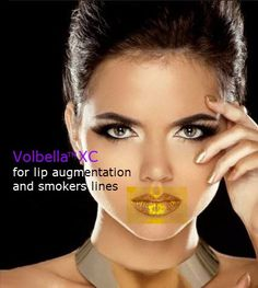 volbella for lip aug