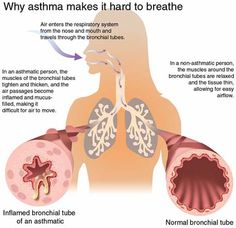 Help, My Husband Has Asthma!