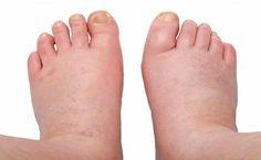 6 Naturheilmittel gegen geschwollene Knöchel, Füße und Beine