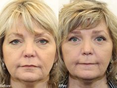 https://flic.kr/p/GswsNQ   Dr. Darm, Eyelids C.D. - Slide1   www.drdarm.com - Results may vary. Eyelid surgery before and after pictures performed by Dr. Ciano.
