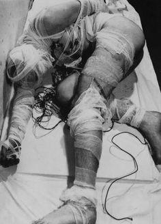 snuff-tv:  Rudolf Schwarzkogler, 1965