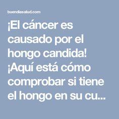 ¡El cáncer es causado por el hongo candida! ¡Aquí está cómo comprobar si tiene el hongo en su cuerpo! - Buen Dia SaludBuen Dia Salud
