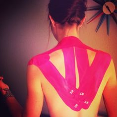 Superb combination KT Tape app for upper back/neck support, shoulder stability, and AC joint pain. Repinned by  SOS Inc. Resources  http://pinterest.com/sostherapy.