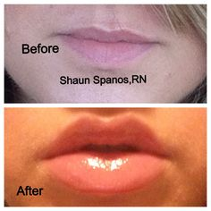 Facial Fillers, Botox Fillers, Lip Fillers, Face Plastic Surgery, Plastic Surgery Photos, Lip Implants, Lip Augmentation, Smokers Lines, Lip Injections