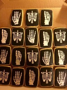 Sarah Sheese: cookies for an X-ray Office. They'd also be great for Halloween!