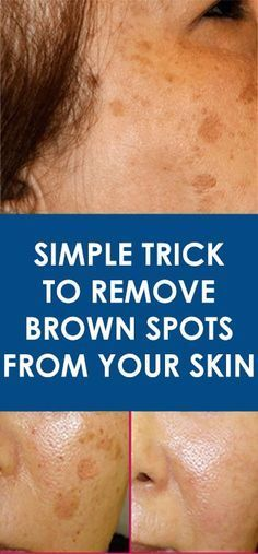 There is nothing scary with having a few brown spots, also known as age spots, but things get really messy when these spots affect one's self-confidence. Age spots are more common on the face area, limbs, shoulders and hands. These are likely to multiply Brown Spots On Skin, Skin Spots, Dark Spots, Age Spots On Face, Brown Skin, Facial Brown Spots, Beauty Secrets, Beauty Hacks, Beauty Tips