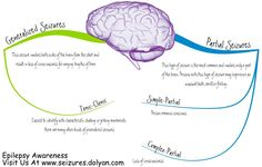 Difference Between Generalized Seizures And Partial Seizures...See More At http://seizures.dolyan.com/seizures-and-teens-partial-seizures/
