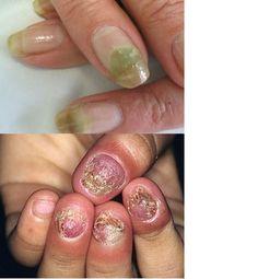 O fungo nas unhas é um dos problemas mais comuns de se obter. Principalmente pelas mulheres, que aparecem como o grupo mais acometido pela infecção. Isso,