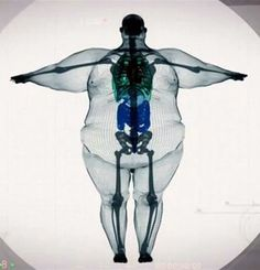 "Nobody is ""big-boned"". Please, take care of yourselves. -"