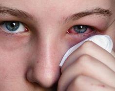 Remédios caseiros para os olhos vermelhos - 7 passos