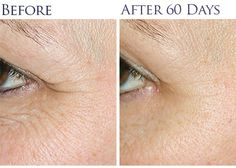 Proof that organic works - just look at these results after only 60 days!  I have noticed a big difference in just a matter of weeks with decreased fine lines and more even toned skin.   Frankincense Intense is magic in a bottle and a MUST have at any age!
