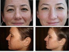 REAL people, REAL results! Dermatologist created skincare! NO risk.....60 day money back guarantee. My customers are LOVING their results! www.nknepp.myrandf.com