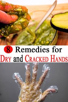 It is said that the hands of a person show her age more than any other body part. Here are 8 tips that help you get rid of cracked and dry hands! Dry Hands Remedy, Dry Skin Remedies, Health Remedies, Cracked Fingertips, Dry Cracked Hands, Hand Soak, Dry Skin On Face, Oily Skin, Rid