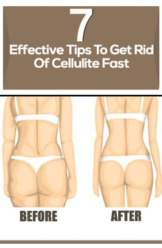 Dont you just hate cellulite?