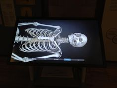 Twitter / NHM_London: Two examples of our new Inside ...