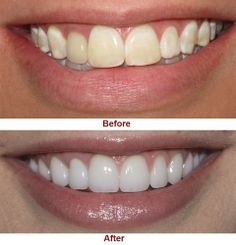Improve Your Smile with #Cosmetic #Dentistry, for more information visit our website.. www.dental-delhi.com