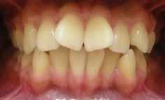 Tuy nhiên, việc áp dụng niềng răng đòi hỏi mức chi phí khá cao cùng với thời gian điều trị khá lâu nên khi bị lệch răng cửa ở mức độ nhẹ thì đây không phải là giải pháp tối ưu nhất. Ngoài ra, niềng răng chỉ có thể điều chỉnh được thế răng bị vênh lệch, đối với những răng vừa bị vênh vừa to dài thì niềng răng không thể khắc phục hoàn toàn được. Vậy bị lệch răng cửa phải làm sao?