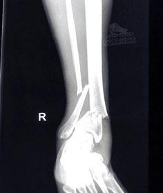 This person broke their ankle bad!