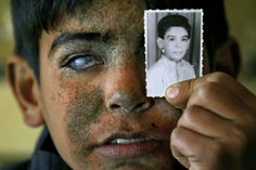 """Ayad Ali Brissam Karim was born in Baghdad in 1991. In 2003, the farm of his parents gets into the frontline and is attacked by US-American helicopters. Worse than the physical injuries are the psychological consequences. """"Many times a day he asks the same question and becomes aggressive for no obvious reason"""", his mother says. In the meantime, Ayad has undergone medical treatment in the US, however, his eyesight could not be recovered.  Foto: Maurício Lima, Brazil / Agence France Press"""