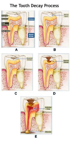 Different stages of tooth decay.