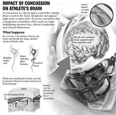 Neurology for Children, Teens, Young Adults & Sleep Medicine for All Ages: Concussion Infographics- Anatomy of mild traumatic brain injury