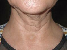 Tratamientos naturales para el envejecimiento del cuello