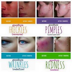 Rodan & Fields has the answer to various skin types and what I love most is they work together! Love the skin you're in, don't hide it!  Khatkinson.myrandf.com