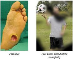 Keeping Diabetes in Check Diabetic Footcare & Eye-screening