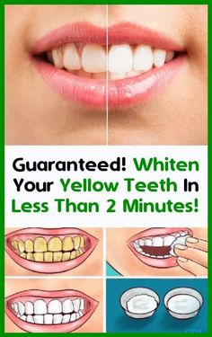 You are guaranteed to whiten your yellow teeth in less than 2 minutes! Beauty And Health Routine, Health And Beauty, Natural Bleach, Oil Mix, Smiles And Laughs, Natural Health Remedies, White Teeth, Alternative Health, Whitening