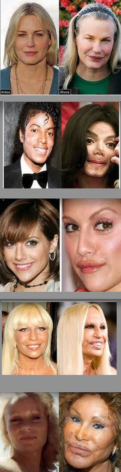 Why did they do it. They looked great before plastic surgery. Moral of the story, don't get plastic surgery!