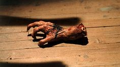 """Can That """"Pins and Needles"""" Feeling Result in a Dead Hand?"""