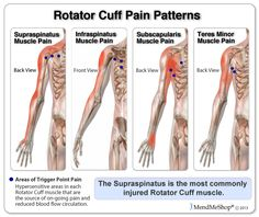 Even after initial pain is reduced trigger points in the rotator cuff muscles are still injured and require on-going treatment to increase blood flow circulation and release the hyperirritable trigger points.