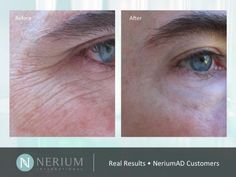 #Nerium Results Photos http://www.slideshare.net/DermaPlanet/nerium-ad-real-results-photos
