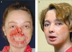 Before and after, of the world's first successful face graft. The woman, had tried to commit suicide with narcotics, she vomited and fell asleep. Her dog gnawed off part of her face as she lay passed out. The dog was euthanized. (DB)