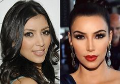 We all know that Kim Kardashian got a nose job! Before and after photos just show overwhelming evidence that she got the bridge narrowed and the tip sculpted.