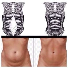 Diastasis recti healing workout