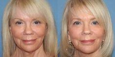 The Eternal Anti-Aging Skin Care Treatment: Tone Your Path To A True Non-Invasive Facelift Via Facial Yoga
