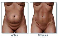 la-cirugia-plastica-de-abdominoplastia