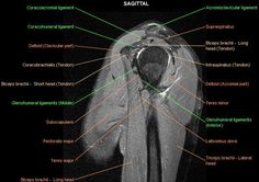 Shoulder MRI | MRI of the shoulder : muscles of the rotator cuff labeled on a ...