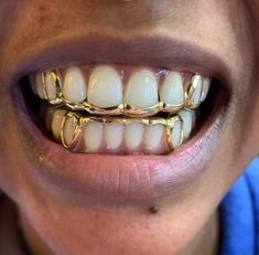 Girls With Grills, Cute Jewelry, Jewelry Accessories, Chain Jewelry, Girl Grillz, Diamond Grillz, Diamond Teeth, Dental Jewelry, Bling Bling