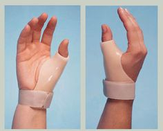Encuentra la Ortesis ideal para tu mano y facilitar así tu vida