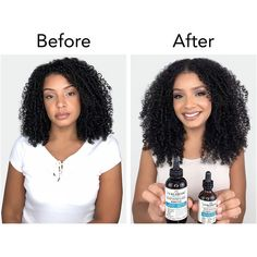 Protective Styles For Natural Hair Discover Curlsmith Scalp Stimulating Booster New Hair Growth, Natural Hair Growth, Curly Hair Styles, Natural Hair Styles, Blonde Lace Front Wigs, Hair Regrowth, Hair Follicles, Lace Hair, Hair Remedies