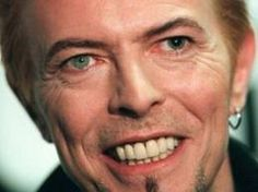 loved his imperfect original teeth,,. later I've learned loving him in any case