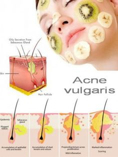 Acne and Pimples Remedies. All-natural means to get rid of and prevent Acne. How To Prevent Pimples For Teenagers Acne And Pimples, Acne Skin, Acne Scars, Oily Skin, Anti Aging Skin Care, Natural Skin Care, Pimples Remedies, Skin Care Routine For 20s, How To Get Rid Of Pimples