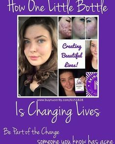 I love my business! Imagine being able to have this type of impact on someone's life. Imagine the difference between how she felt with her acne and how she feels now. This is the impact I love having for other people. Skincerity for acne, anti-aging and SO much more. Visit my website www.buynucerity.com/6151828  to see all our great products. #werollsuccess #skincerity #nomoreacne #antiaging #nucerity #workonline #workfromhome #beyourownboss #havefreedom #empowering #meaningful #linkedin #fb