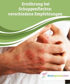 Psoriasis Arthritis, Free Diet Plans, Flat Stomach, Want To Lose Weight, Nutrition Tips, Weight Loss Tips, Hairstyles, How To Plan, Elderly Care