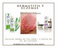 Aromatherapy Oils, Essential Oils, Mariana, Aromatherapy, Health, Proposals, Healthy Life, Essential Oil Uses